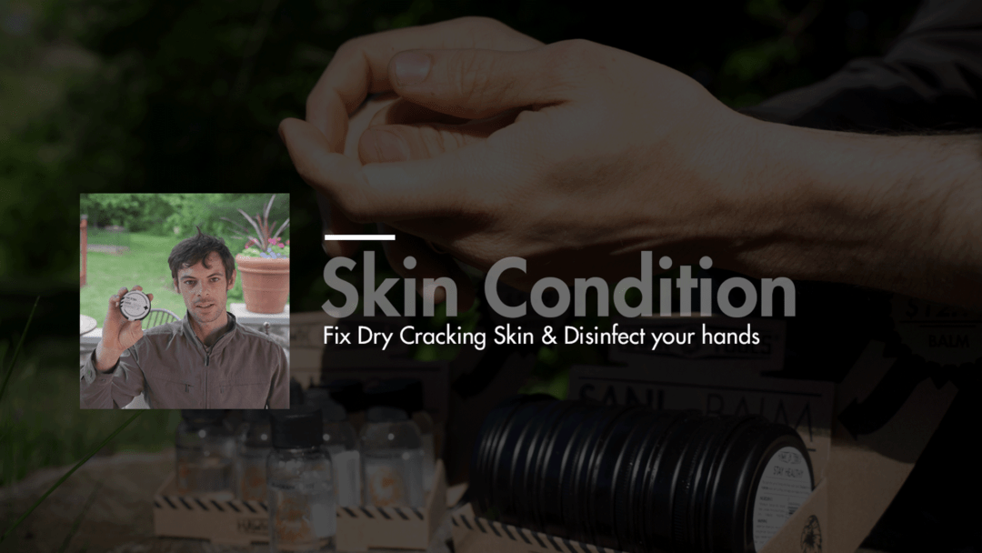 Dry and cracking skin condition banner image